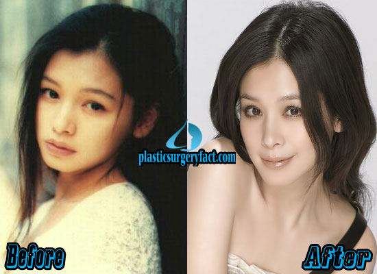 Vivian Hsu Plastic Surgery Before and After