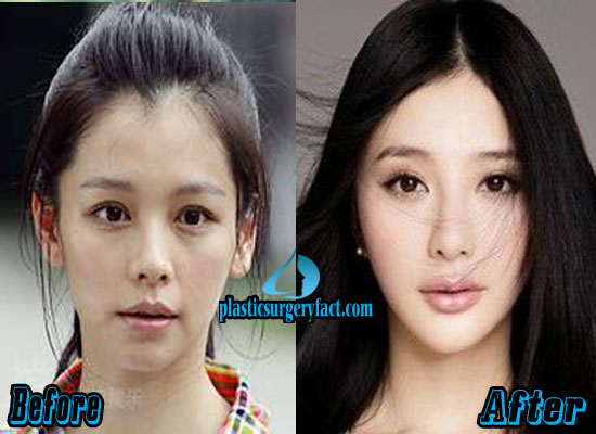 Vivian Hsu Plastic Surgery Face
