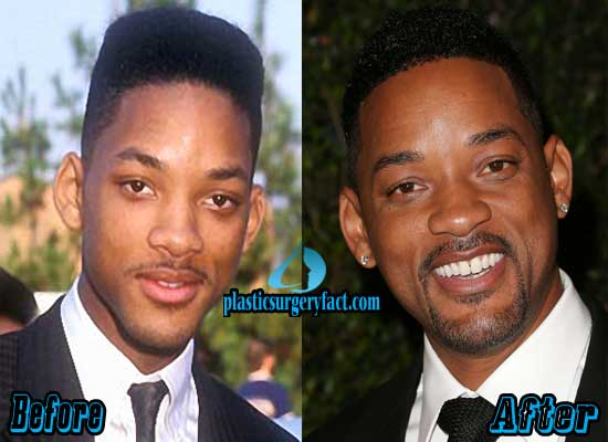 Will Smith Plastic Surgery Ears