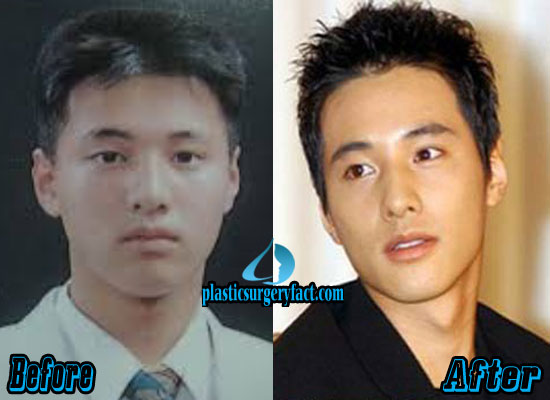Won Bin Plastic Surgery Before and After