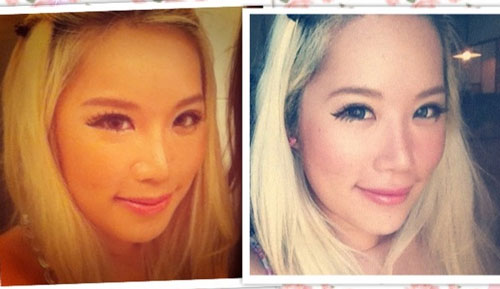 Xiaxue Before and After Plastic Surgery