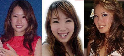 Xiaxue Plastic Surgery Before and After