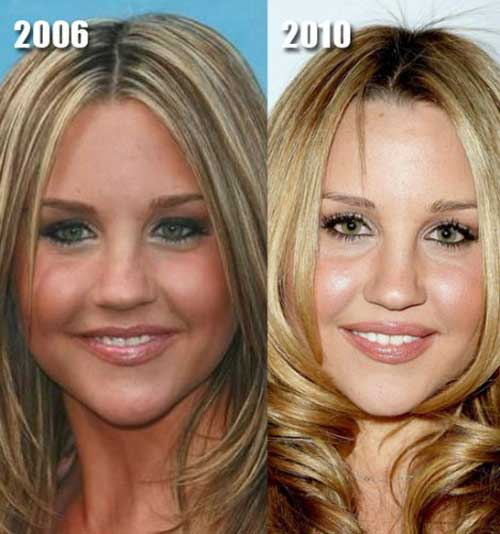 Amanda Bynes Before and After Plastic Surgery