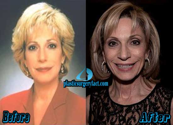Andrea Mitchell Before and After Plastic Surgery