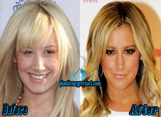 Ashley Tisdale Rhinoplasty Surgery Before and After