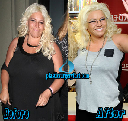 Beth Chapman Plastic Surgery Before and After