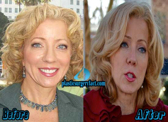 Beth Karas Nose Job Before and After