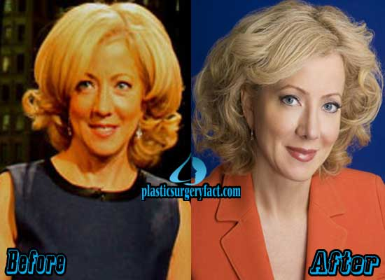 Beth Karas Plastic Surgery Before and After