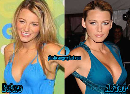 Blake Lively Boob Jobs Before and After