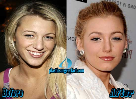 Blake Lively Rhinoplasty Surgery Before And After