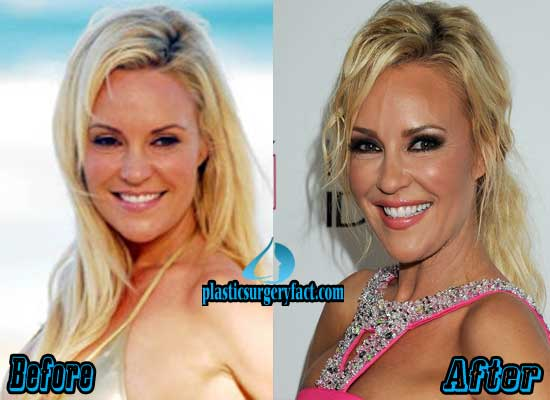 Bridget Marquardt Before and After Plastic Surgery