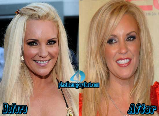 Bridget Marquardt Plastic Surgery Before and After Pictures