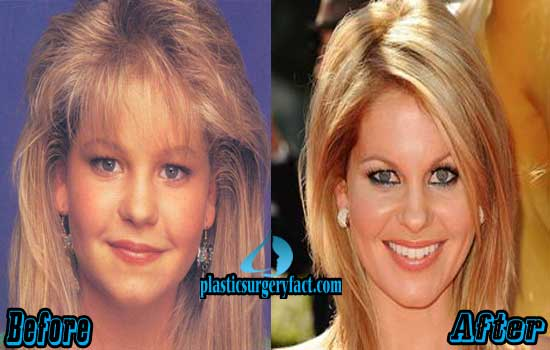 Candace Cameron Nose Job Before and After