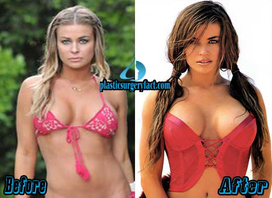 Carmen Electra Boob Jobs Before and After