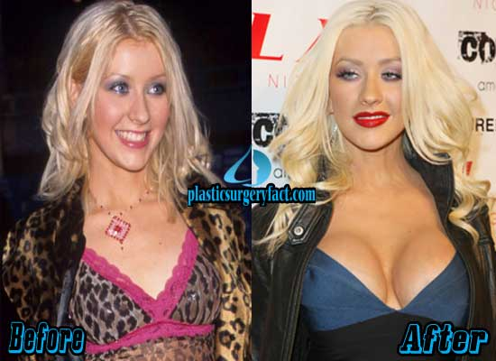 Christina Aguilera Boob Jobs Before and After