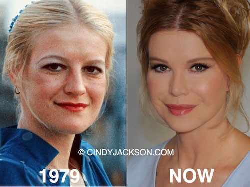 Cindy Jackson Plastic Surgery Before and After
