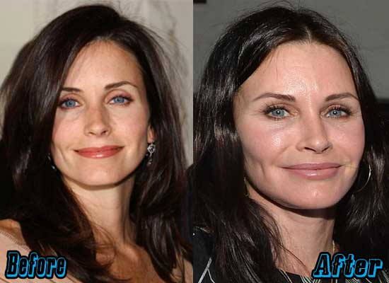 Courteney Cox Plastic Surgery Pictures