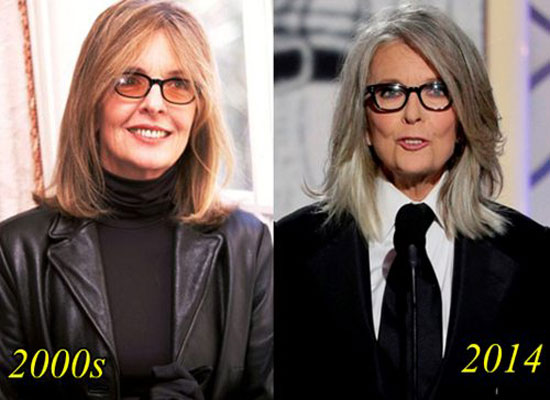 Diane Keaton Before and After Plastic Surgery
