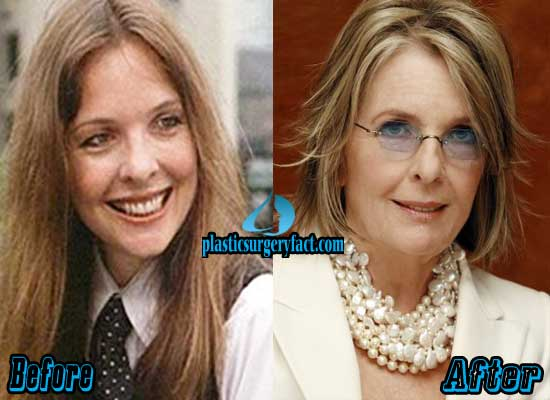 Diane Keaton Nose Job Before and After Pictures