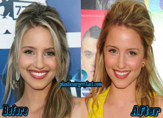 Dianna Agron Nose Job Before and After Photos