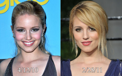 Dianna Agron Rhinoplasty Surgery Before and After
