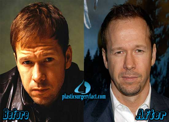 Donnie Wahlberg Plastic Surgery Face