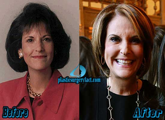 Gloria Borger Facelift Before and After