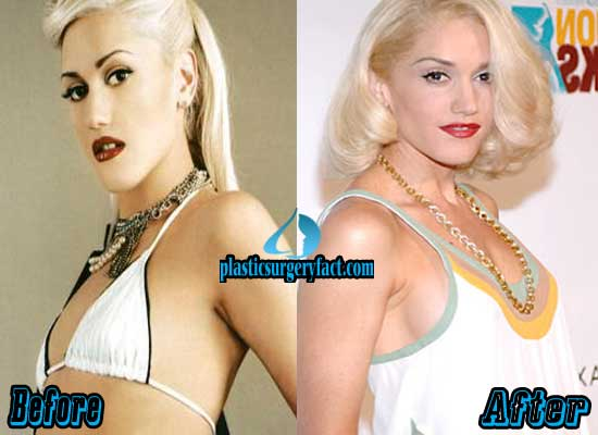 Gwen Stefani Boob Jobs Before and After