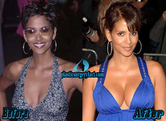 Halle Berry Boob Jobs Before and After
