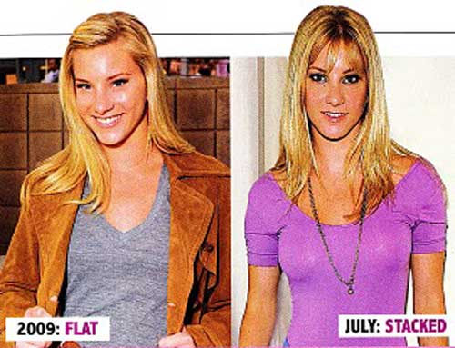 Heather Morris Boob Jobs Before and After