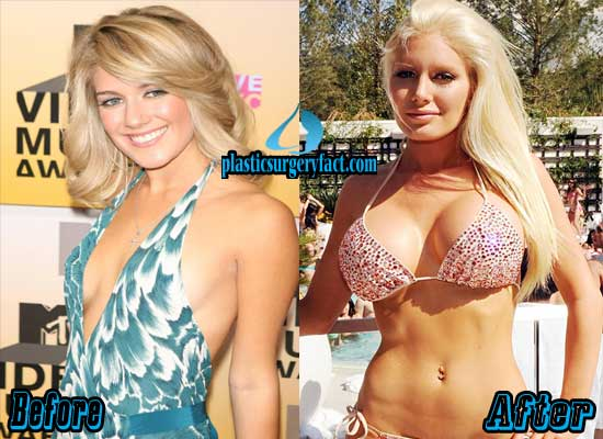 Heidi Montag Boob Jobs Before and After