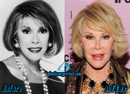 Joan Rivers Before and After Facelift