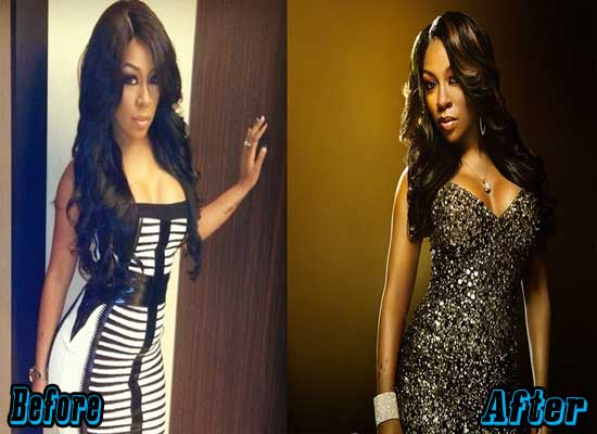 K. Michelle Breast Augmentation Before and After