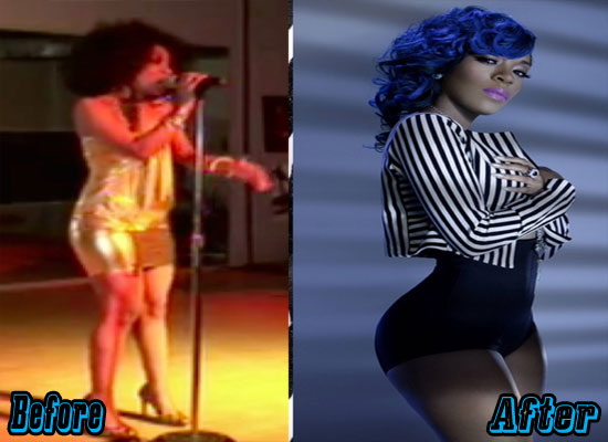 K Michelle Plastic Surgery Before And After Plastic