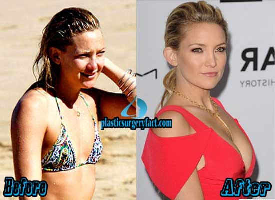 Kate Hudson Boob Jobs Before and After