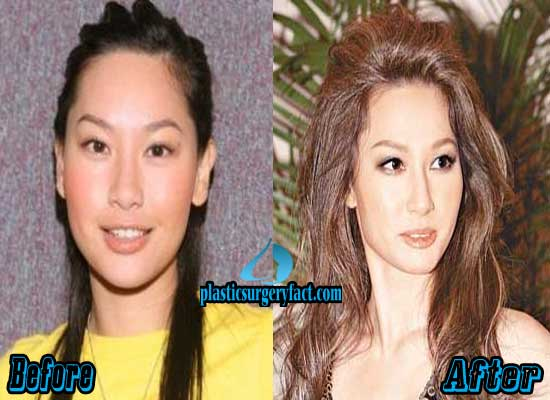 Kate Tsui Nose Job Before and After
