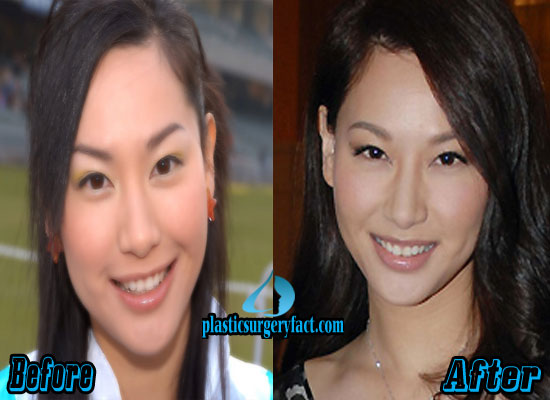 Kate Tsui Plastic Surgery Before and After