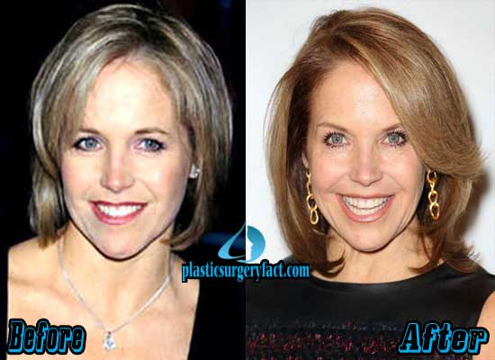 Katie Couric Plastic Surgery Before & After