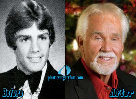 Kenny Rogers Facelift Before and After