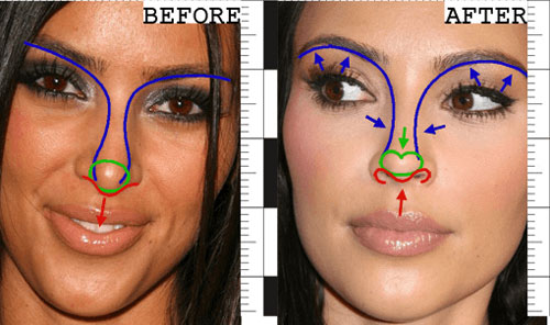 Kim Kardashian Rhinoplasty Surgery