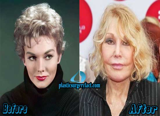 Kim Novak Bad Plastic Surgery