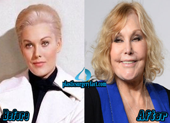 Kim Novak Plastic Surgery Before and After