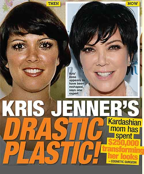 Kris Jenner Before and After Facelift