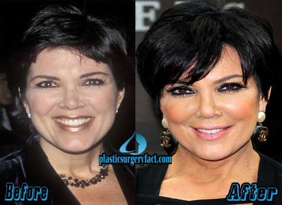 Kris Jenner Facelift Before and After