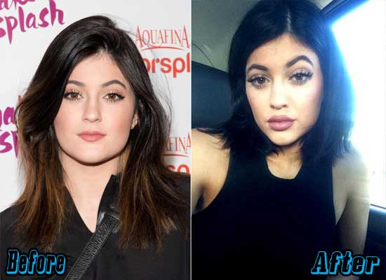 Kylie Jenner Lips Augmentation