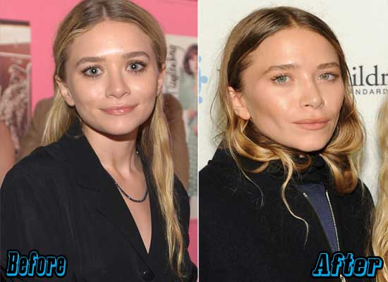 Marry Kate Olsen Plastic Surgery Pictures