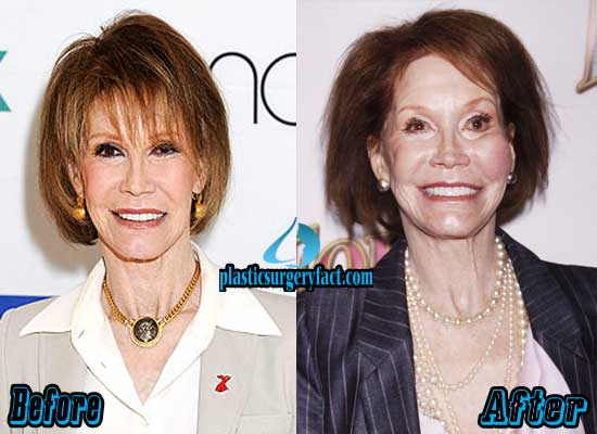 Mary Tyler Moore Plastic Surgery Gone Wrong