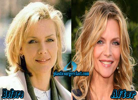 Michelle Pfeiffer Before and After Nose Job