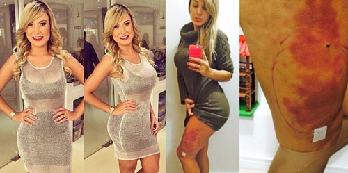 Miss Bumbum Plastic Surgery Gone Wrong