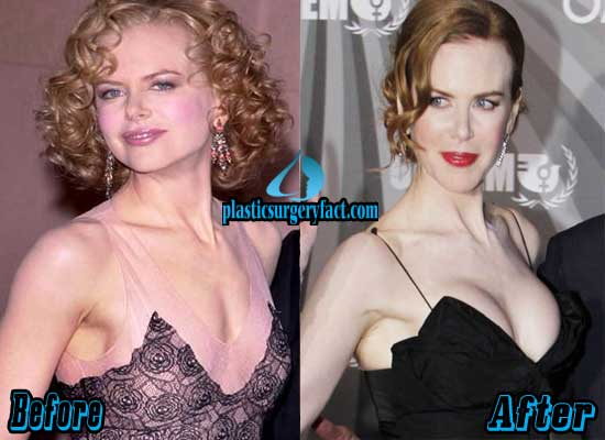Nicole Kidman Boob Jobs Before and After